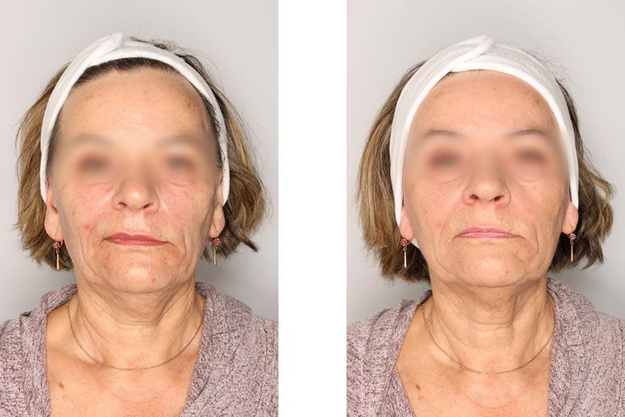 efekty-miomodulacja (2)